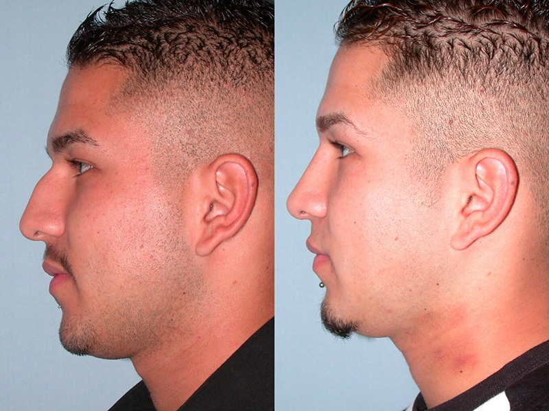 Things to Do and Not to Do After a Nose Reshaping Surgery