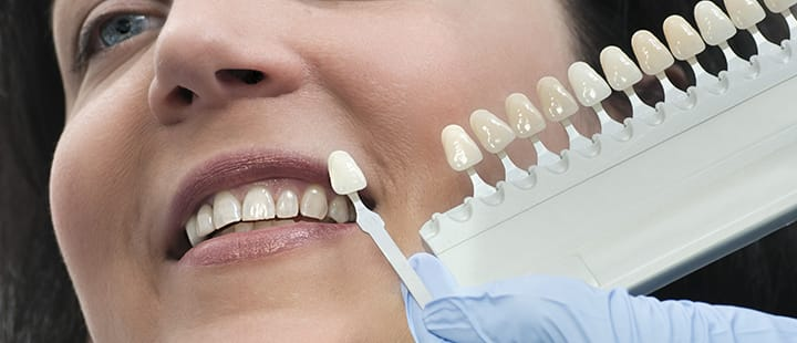 Cosmetic Dental Work, Will It Be For You?